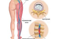 a celebrex lumbosacrális gerinc-kezelésének artrózisa